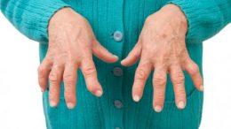 lucha con artritis