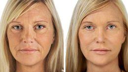 bicarbonato para tener un rostro de porcelana más joven
