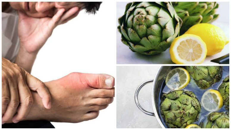 remedio natural para eliminar el ácido úrico