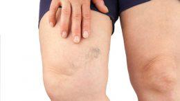 remedios caseros para quitar las arañitas y varices en las piernas