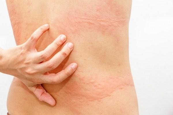 efectos secundarios del jengibre