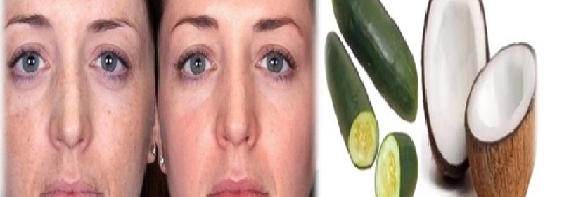 coco-y-pepino-para-las-afecciones-de-la-piel