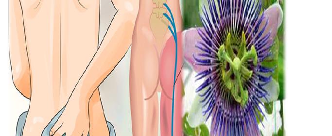 remedios caseros para el nervio ciático
