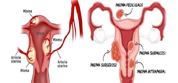 como-eliminar-miomas-uterinos