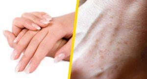 como-eliminar-manchas-oscuras-de-las-manos