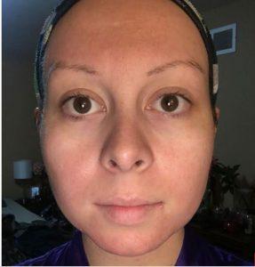 beneficios del limón para la cara