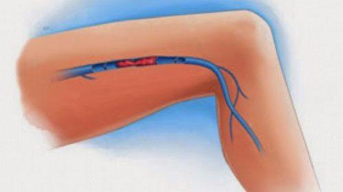 síntomas de una trombosis venosa en piernas