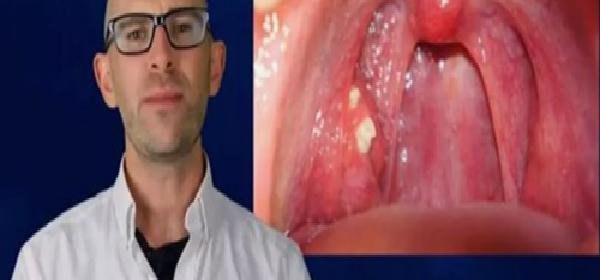 remedios-para-dolor-del-garganta