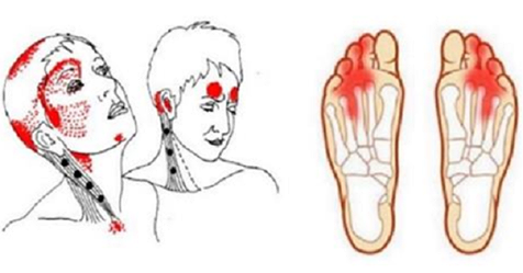 síntomas de deficiencia de vitamina B12