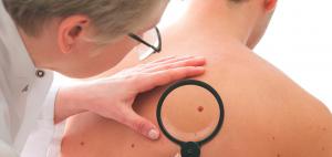 tratamiento de cáncer de piel