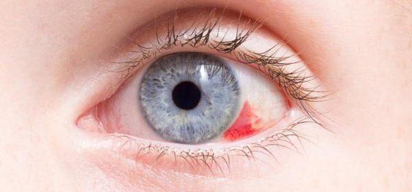 quitar la carnosidad de los ojos