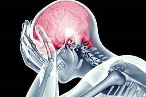 Síntomas y factores de riesgo en los derrames cerebrales